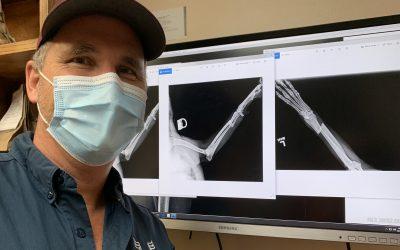 Logan's leg badly broken by car – Emergency Surgery Needed
